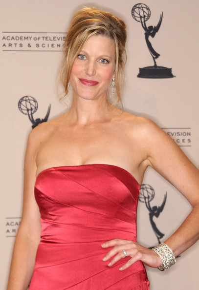 Did Cortisone Really Cause Anna Gunn's Drastic Weight Loss
