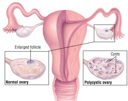 PCOS and soy
