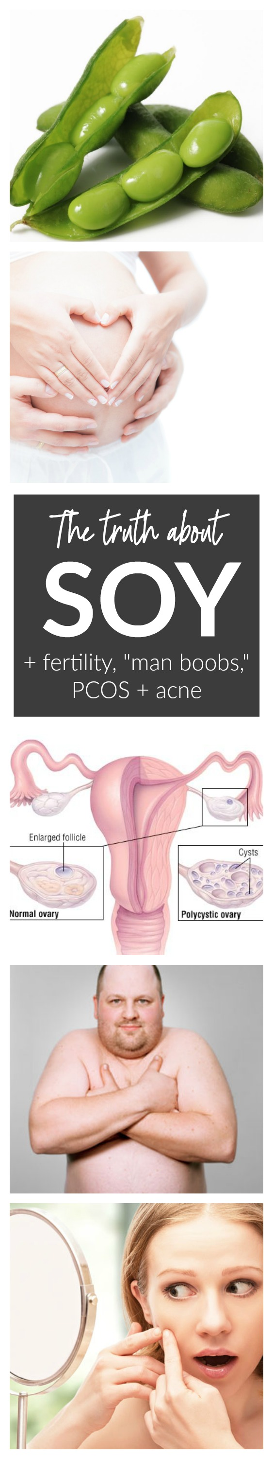 soy and fertility acne PCOS and man boobs